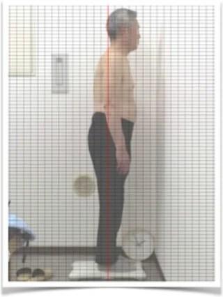 座骨神経痛63歳男性初回pre