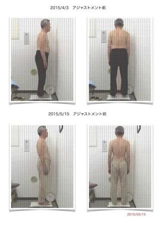 座骨神経痛63歳男性4回