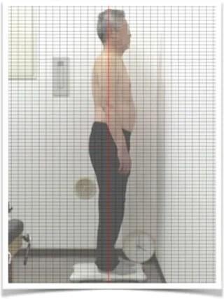 座骨神経痛63歳男性初回post