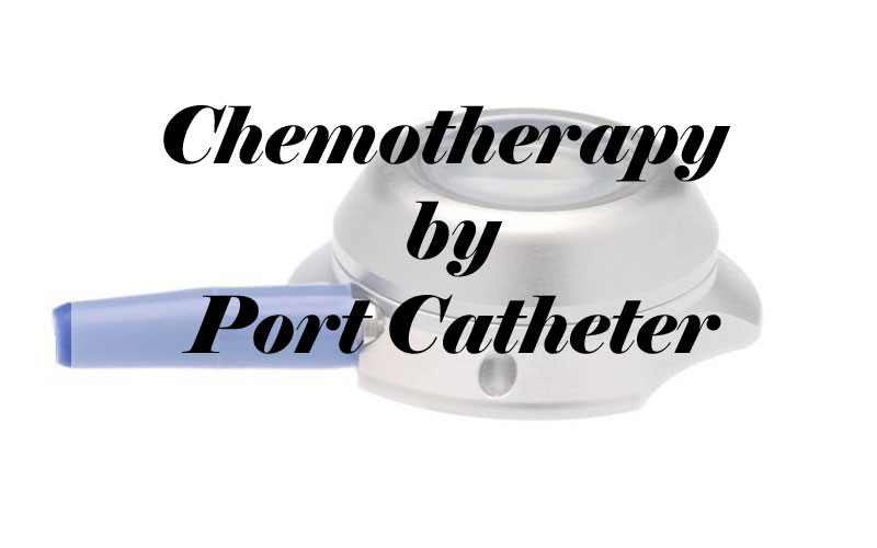 Chemotherapy by Port Catheter