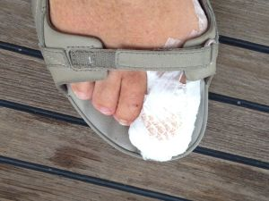 4. Anne's toe after the emergency surgical removal of her toe nail one day before Joyful's transit of Panama Canal.  You are lucky the gauze is on for this photo!