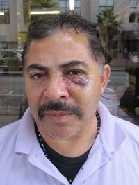 Edgardo Campos, robbed at gun point Saturday night.