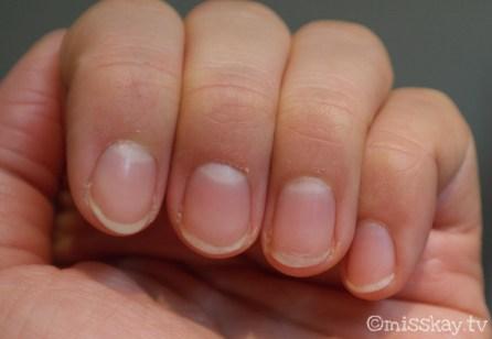 Das Ergebnis dank Essie rock solid (linke Hand)