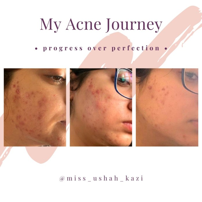 acne transformation