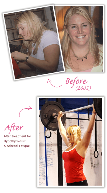 Losing Weight With Hypothyroidism Success Stories : losing, weight, hypothyroidism, success, stories, Lizzy's, Hypothyroidism, Success, Story, Lizzy, Thyroid, Support