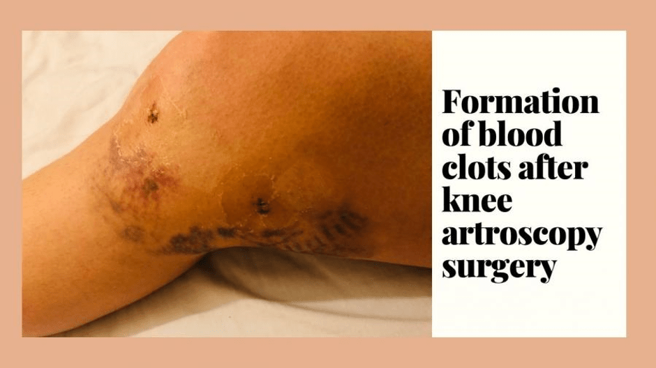 Formation of blood clots after knee surgery
