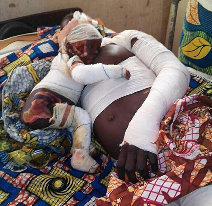 Powerful photo :Injured mum breastfeeds baby after surviving explosion