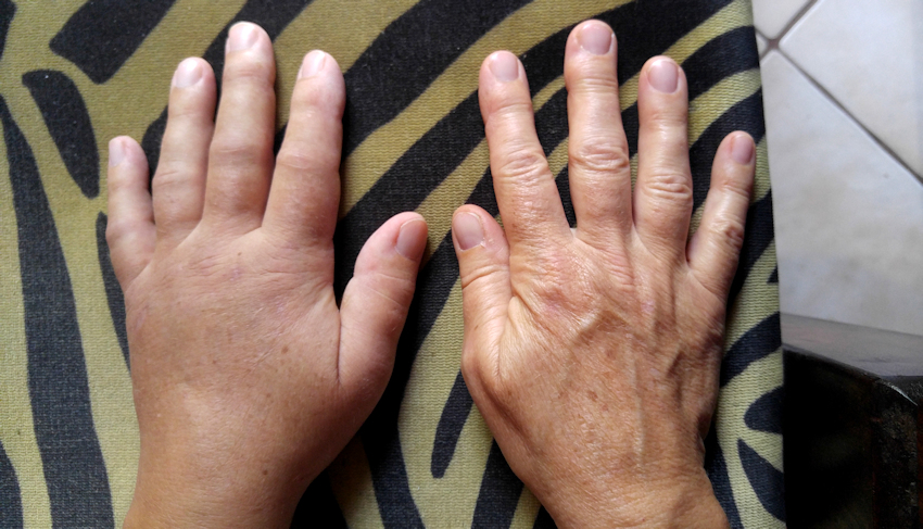crps syndrom therapie erfahrung