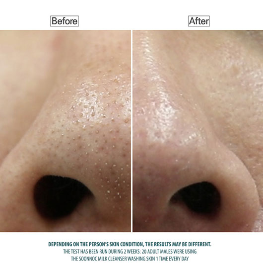 pore cleansing with soonnoc milk cleanser
