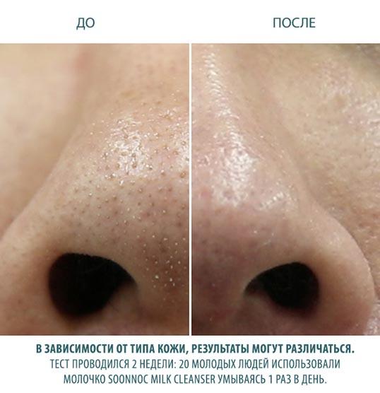 избавить от угрей чувствительную кожу