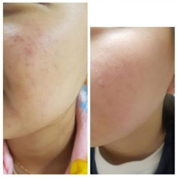 Incellderm customer review and photo 007
