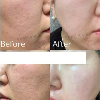 Incellderm customer review and photo 009