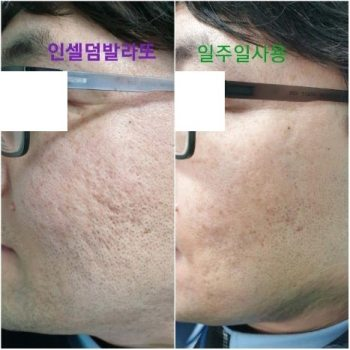 Incellderm customer review and photo 012