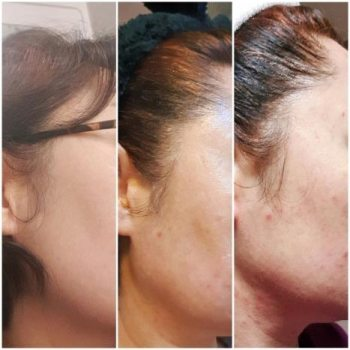 Incellderm customer review and photo 003