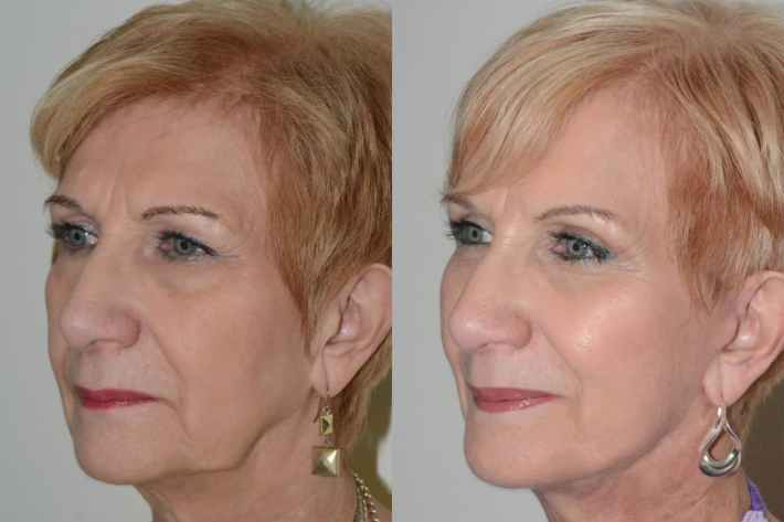 plastic surgery for scars before and after | celebrity plastic surgery