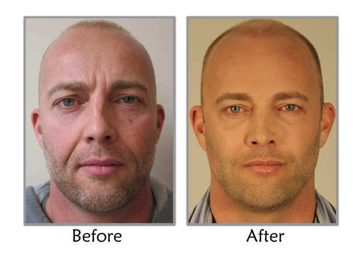 plastic surgery for men before and after photos | celebrity plastic