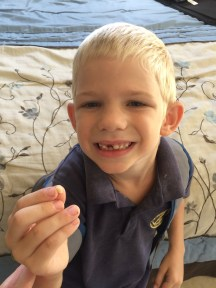 Noah-man lost yet another tooth!