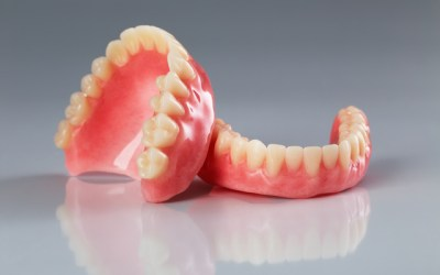 Implant Prosthesis Over-Dentures