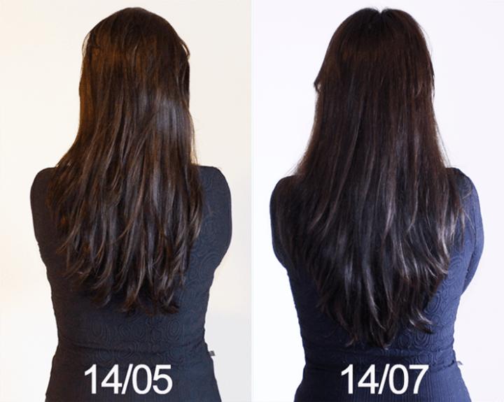 antes e depois crece pelo 2