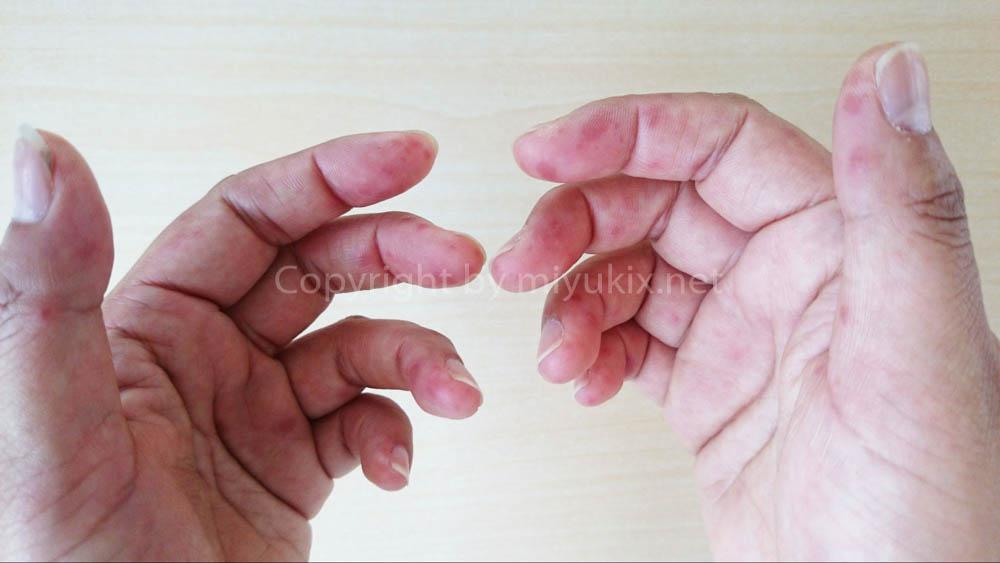 手足 口 病 大人 寫真 | 手足口病の癥狀・寫真・畫像 大人への感染・治療 潛伏期間