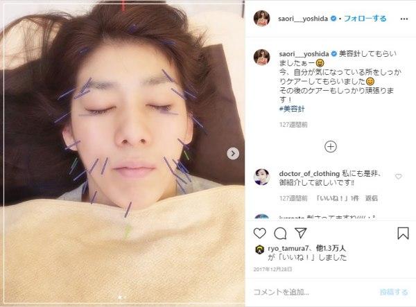最近女子力アップして綺麗になった&かわいい吉田沙保里が美容鍼をしているインスタ画像