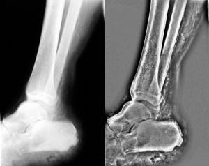 Osteomyelitis chronic-Left Original X-ray scan - Right Miznee scan