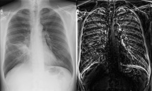 Chest X-ray Deep View Scan by Miznee type2