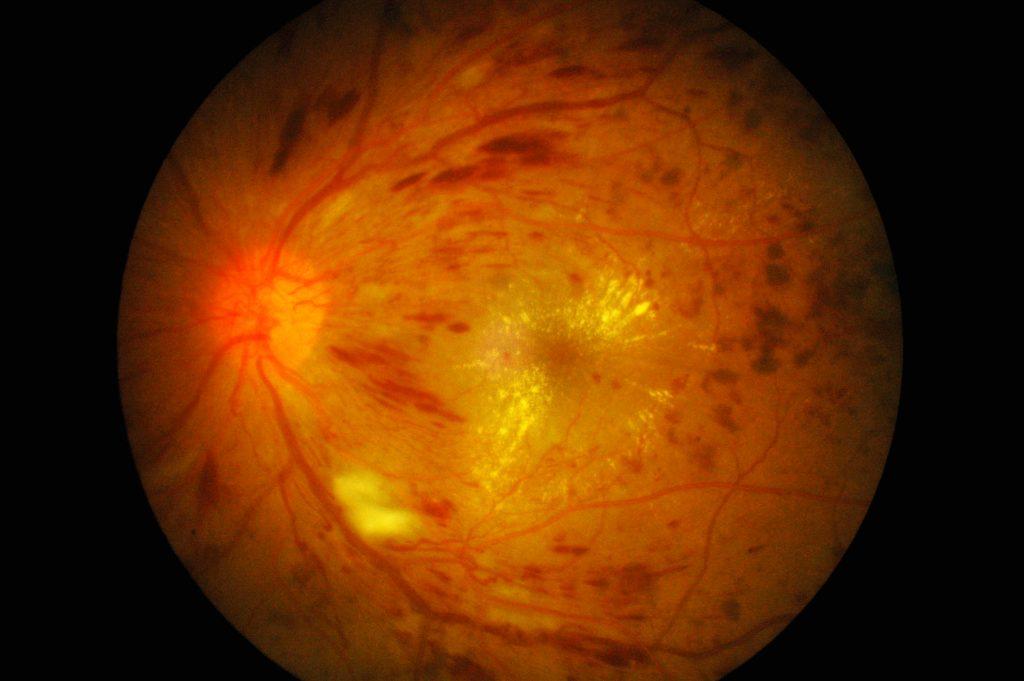糖尿病で眼底出血する理由|醫師水野のブログ