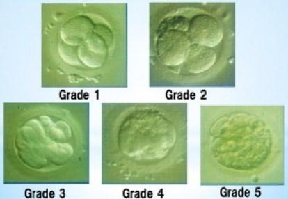 胚グレード