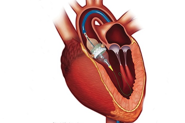 Things you need to know before opting for TAVI/TAVR ...