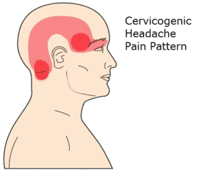 Can Neck Pain Cause Headache? - The Doctors Of Physical ...