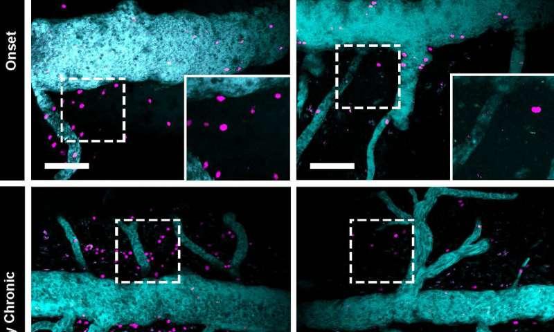 Разработаны методы замедления прогрессирования рассеянного склероза