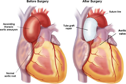 diagram of a heart bypass graft ignition coil the ether way: strength for journey