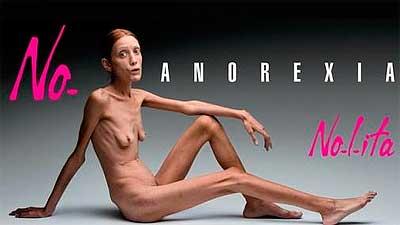 анорексия симпотомы