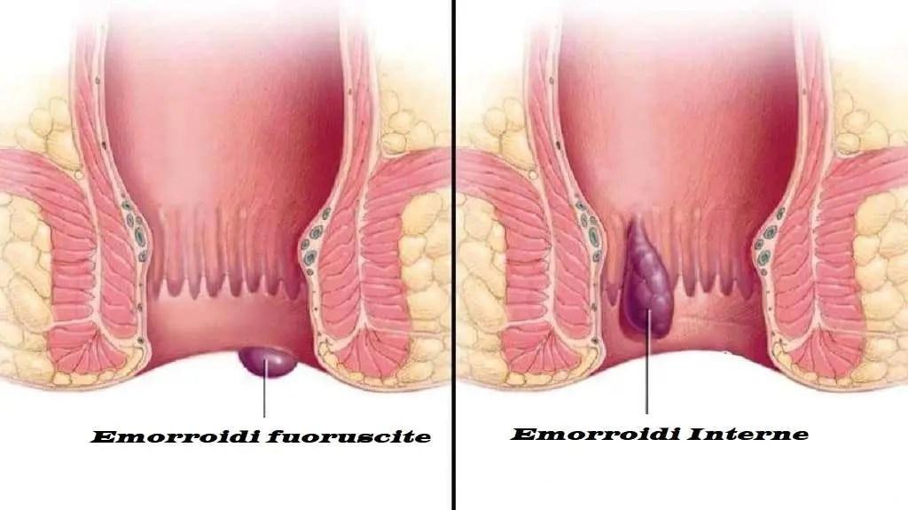 emorroidi