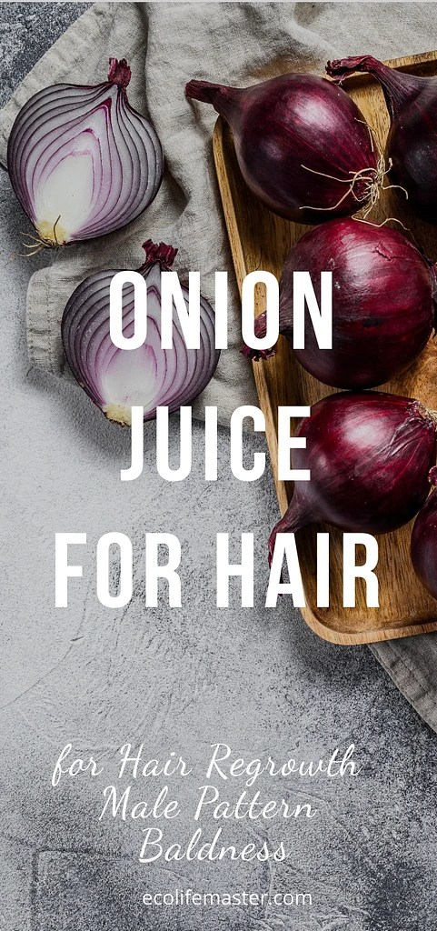Onion Juice for Hair Regrowth Male Pattern Baldness – Best Natural Cure Recipe
