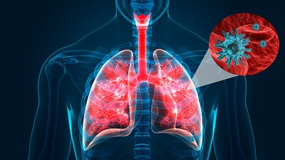 MediPines Releases COVID-19 Statement of Guidance for Pulmonary ...