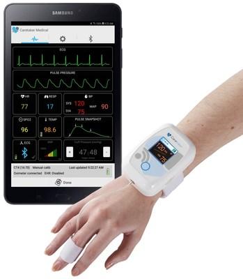 The Caretaker Wireless Patient Monitor for Continuous Non-Invasive Blood Pressure