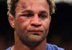 UFC on FOX: Koscheck v Hendricks
