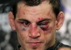 jon_fitch-300×289