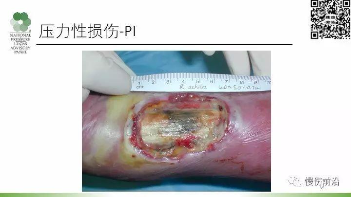 3/4期壓力性損傷的診斷和管理_慢傷前沿 - 微文庫