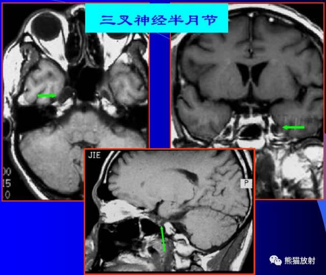【精選】腦神經 MRI 斷層解剖_中國醫藥科學雜誌 - 微文庫