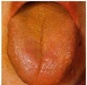 注意!這幾種舌苔預示疾病! | 尋夢新聞