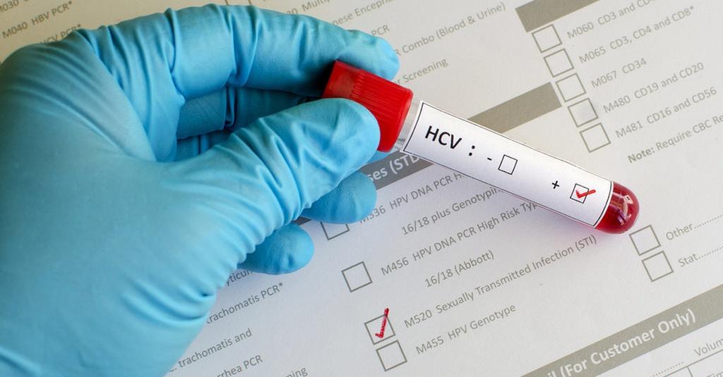 Mengenal Penyakit Hepatitis B dan Cara Mengobatinya - Tirto.ID