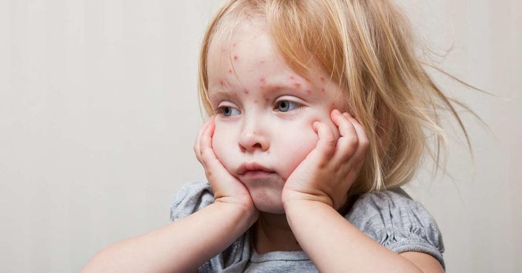 Mengenal Flu Singapura, Penyakit Tangan, Kaki & Mulut pada Anak ...