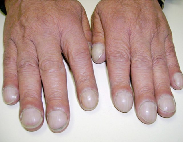 2-Clubbed-nails-