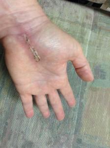 Cheryl Schatz carpal tunnel surgery