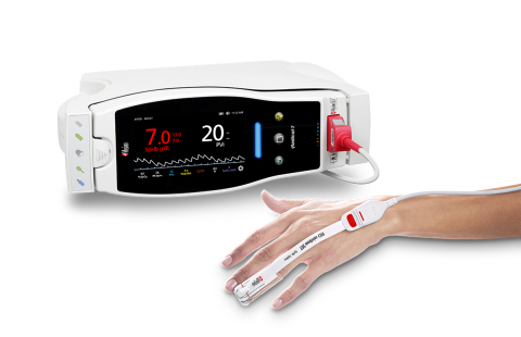 Masimo Radical-7® with PVi® (Photo: Business Wire)