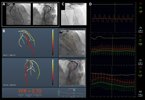 CathWorks FFRangio System delivers objective measurements to confirm PCI decisions. (Graphic: Busine ...