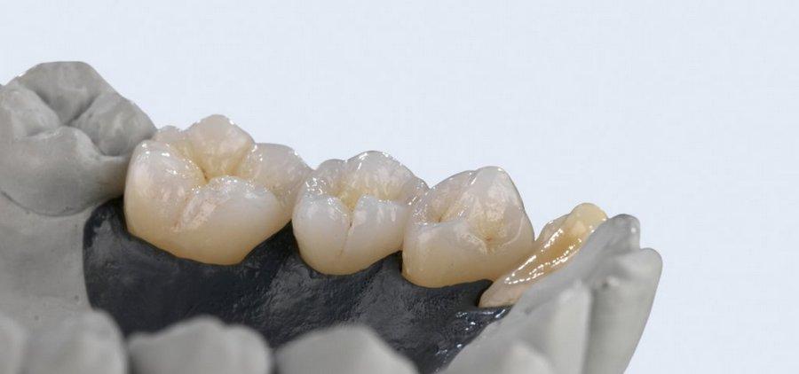 Протезирование зубов при беременности